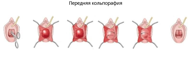 Передняя Кольпорафия