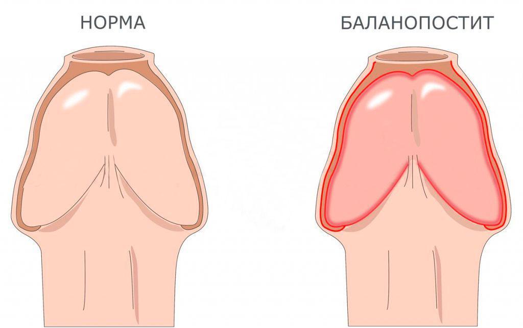 Баланопостит – лечение Баланопостита Киев