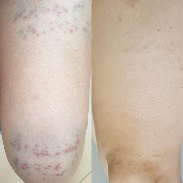 Лечение контактного дерматита Киев