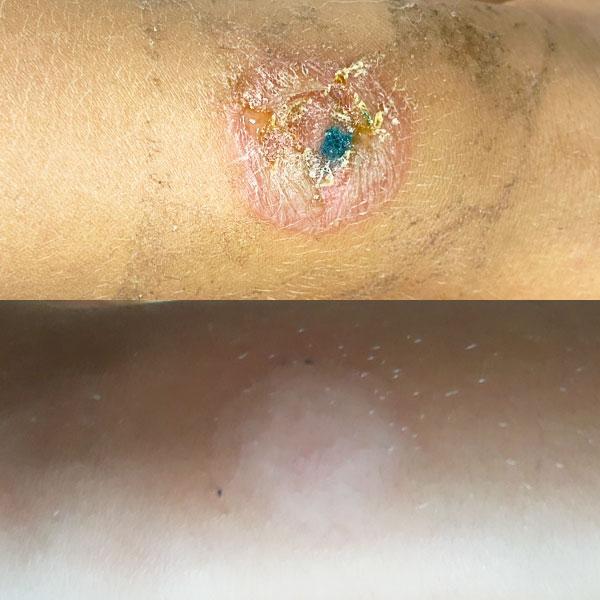 Детский дерматолог – лечение пиодермии у ребенка