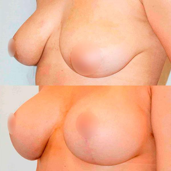 Подтяжка груди – Увеличение груди Киев