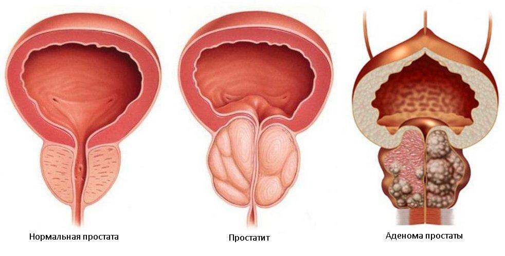 Лечение простатита Киев