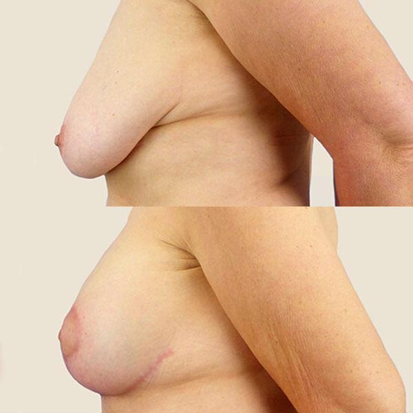 Подтяжка груди- уменьшение груди