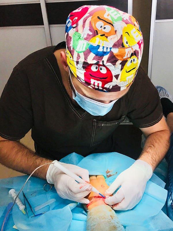 Хирургическое удаление липомы, атеромы, гигромы