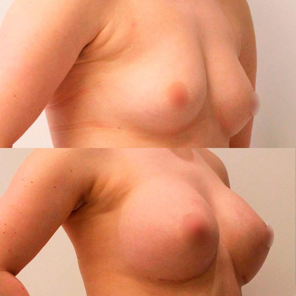 Маммопластика – увеличение груди Киев