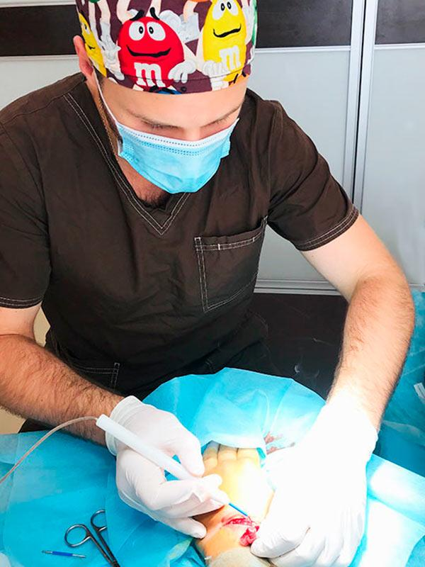Амбулаторная хирургия – удаление новообразований