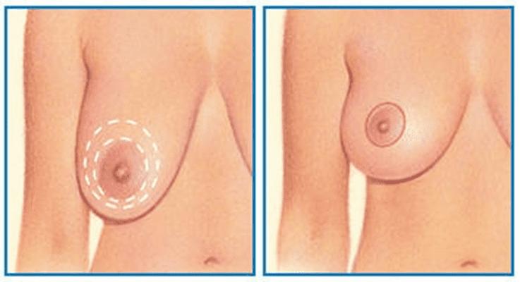 Периареолярная подтяжа груди