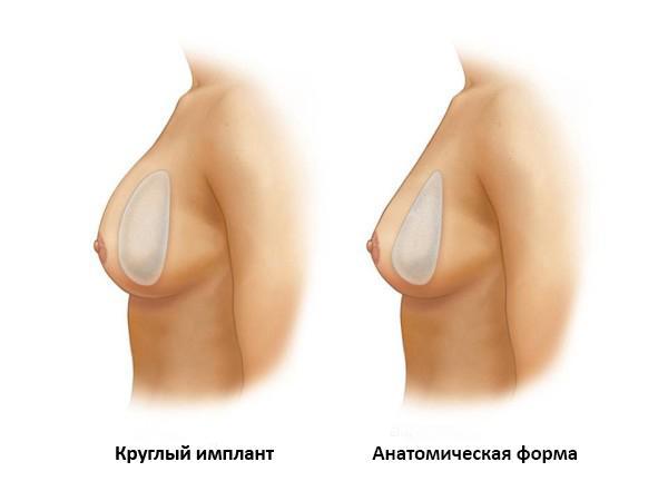 Формы имплантов – увеличение груди