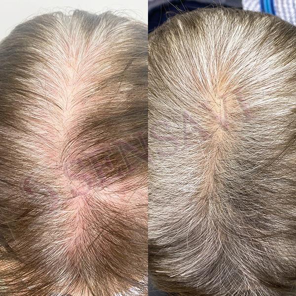 Лечение выпадения волос по женскому типу Киев