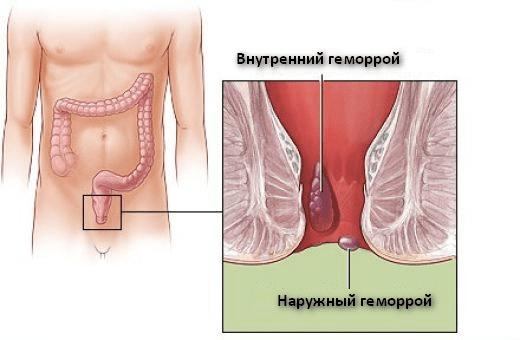 Лечение геморроя Киев