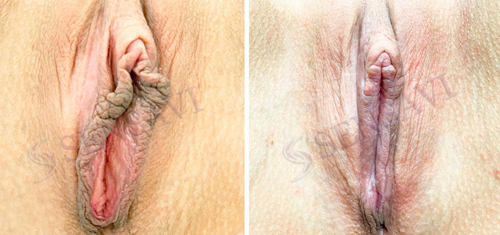 Хирургическая коррекция малых половых губ и капюшона клитора Киев