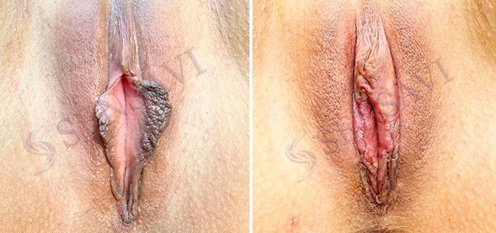 Коррекция малых половых губ Киев