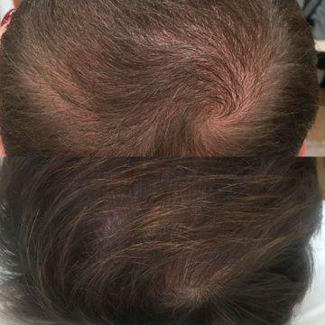 Плазмолифтинг волос Киев